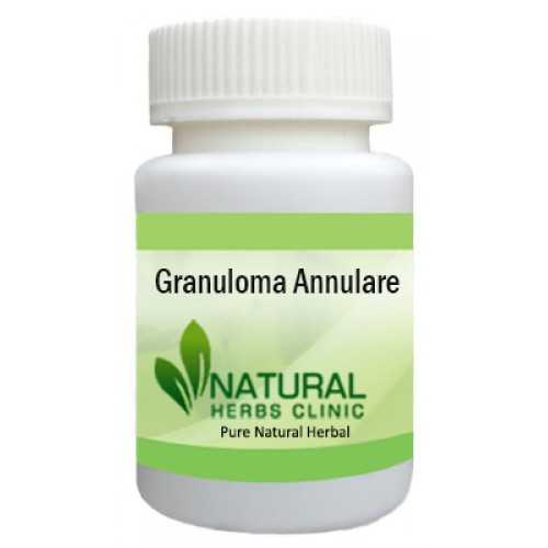 Herbal Treatment for Granuloma Annulare - Natural Herbs Clinic