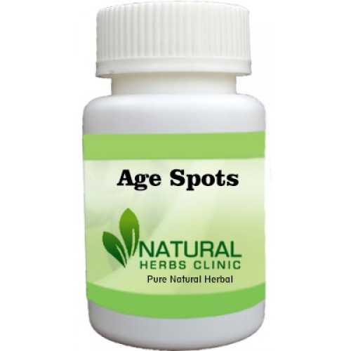 Herbal Treatment for Age Spots - Natural Herbs Clinic