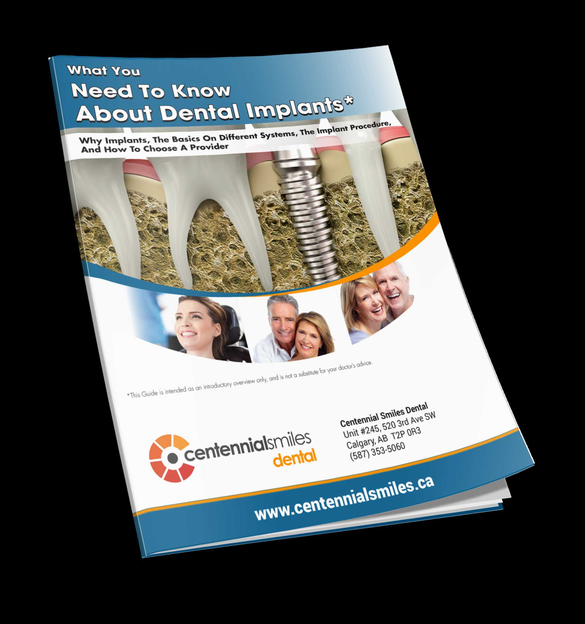 Free Guide on  Dental Implants